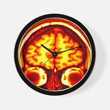 Brain, MRI scan Wall Clock