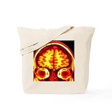 Brain, MRI scan Tote Bag