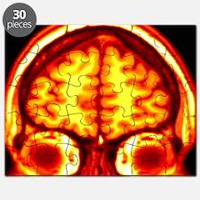 Brain, MRI scan Puzzle