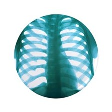 """Chest X-ray of a healthy human heart 3.5"""" Button"""