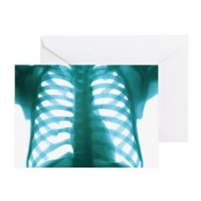 Chest X-ray of a healthy human heart Greeting Card