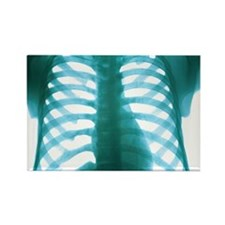 Chest X-ray of a healthy human he Rectangle Magnet