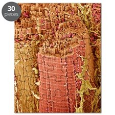 Cardiac muscle, SEM Puzzle