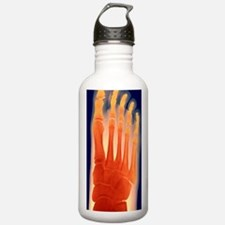 Child's foot, X-ray Water Bottle