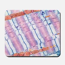 Cardiac muscle, TEM Mousepad
