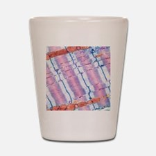 Cardiac muscle, TEM Shot Glass