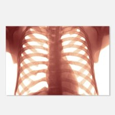 Chest X-ray of a healhty  Postcards (Package of 8)
