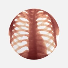 """Chest X-ray of a healhty human heart 3.5"""" Button"""