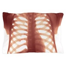 Chest X-ray of a healhty human heart Pillow Case
