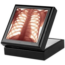 Chest X-ray of a healhty human heart Keepsake Box