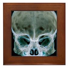 Child's skull Framed Tile
