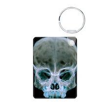 Child's skull Keychains