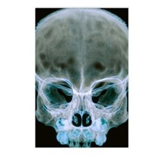 Child's skull Postcards (Package of 8)