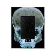 Child's skull Picture Frame