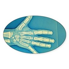Child hand X-ray Decal