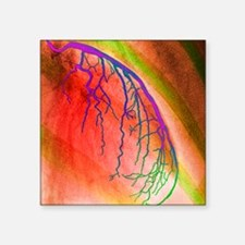 "Coloured angiogram of coron Square Sticker 3"" x 3"""