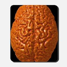 Child's brain, 3-D MRI scan Mousepad