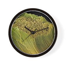 Collagen bundles, SEM Wall Clock