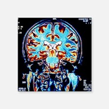 "Coloured MRI scans of the b Square Sticker 3"" x 3"""