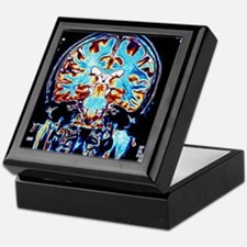 Coloured MRI scans of the brain, coro Keepsake Box