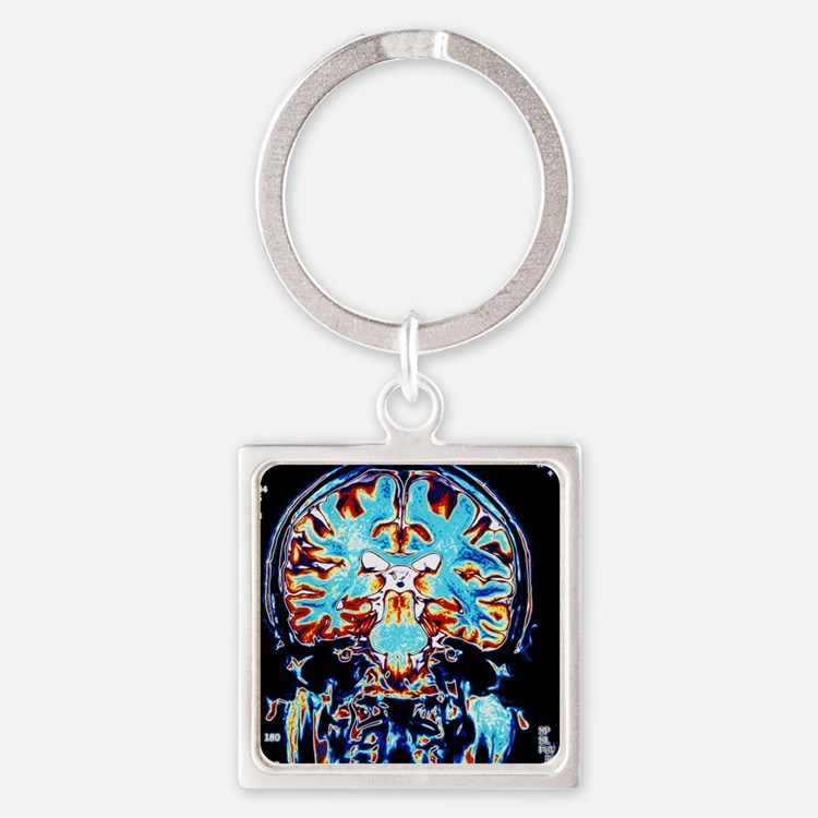 Coloured MRI scans of the brain, c Square Keychain