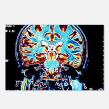 Coloured MRI scans of the Postcards (Package of 8)
