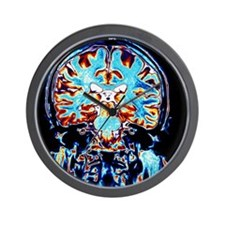 Coloured MRI scans of the brain, corona Wall Clock