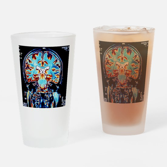 Coloured MRI scans of the brain, co Drinking Glass
