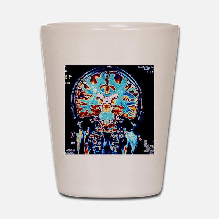 Coloured MRI scans of the brain, corona Shot Glass