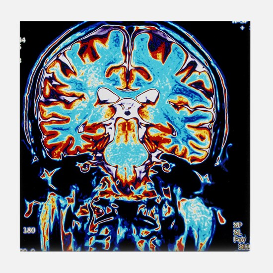 Coloured MRI scans of the brain, coro Tile Coaster