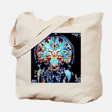 Coloured MRI scans of the brain, coronal  Tote Bag