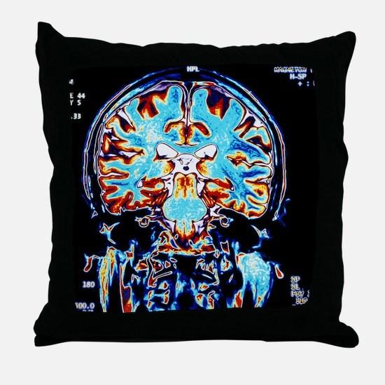 Coloured MRI scans of the brain, coro Throw Pillow