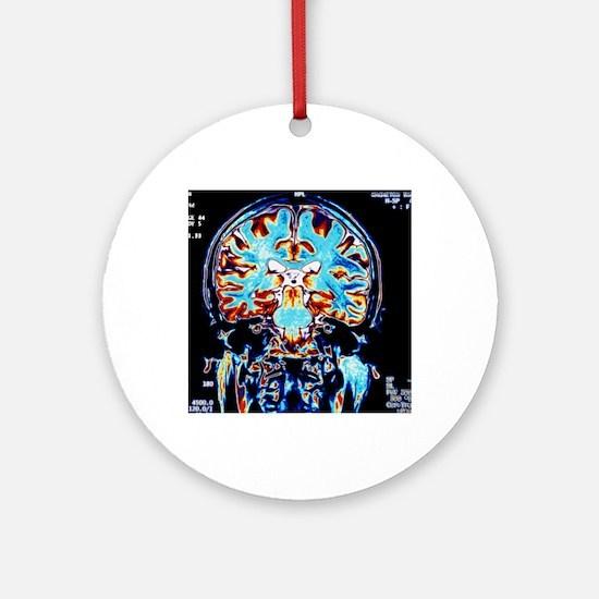 Coloured MRI scans of the brain, co Round Ornament