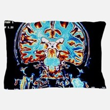 Coloured MRI scans of the brain, coron Pillow Case