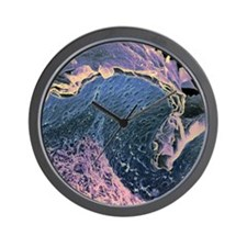 Coloured SEM of a section through skin  Wall Clock