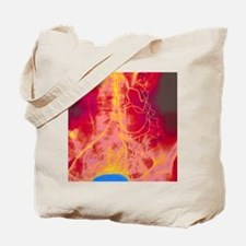 Coloured angiogram (X-ray) of mesenteric  Tote Bag