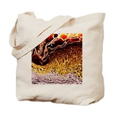 Coloured SEM of a section through skin Tote Bag