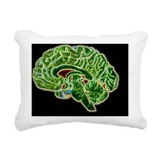 Coloured CT scan of a he Rectangular Canvas Pillow