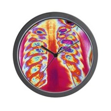 Coloured chest X-ray of a healthy woman Wall Clock