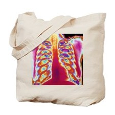 Coloured chest X-ray of a healthy woman Tote Bag