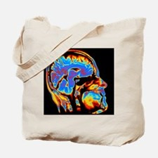 Coloured CT scan of the brain in head (si Tote Bag