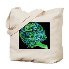 Coloured SEM of a glomerulus in the human Tote Bag