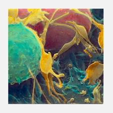 Coloured SEM of activated platelets i Tile Coaster