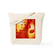 Computer artwork of a blood clot Tote Bag