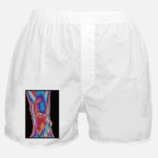 Coloured X-ray of a human knee joint  Boxer Shorts