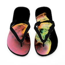 Coloured X-ray of a human skull seen fr Flip Flops