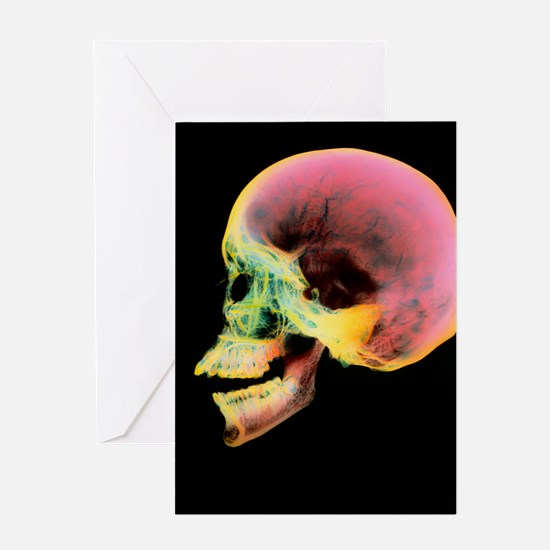 Coloured X-ray of a human skull seen Greeting Card