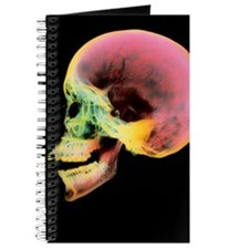Coloured X-ray of a human skull seen from  Journal