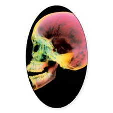 Coloured X-ray of a human skull see Decal