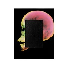 Coloured X-ray of a human skull seen Picture Frame